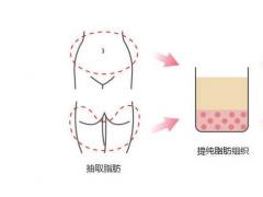 韦元强分析:自体脂肪填充安全吗?
